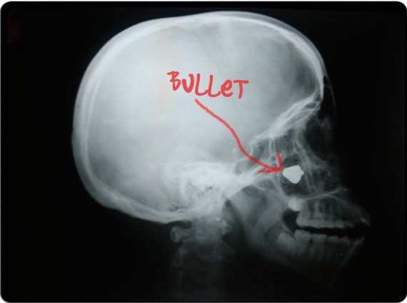 Actual x-ray of Neiroby s skull showing the location of the bullet in    Xray Broken Skull
